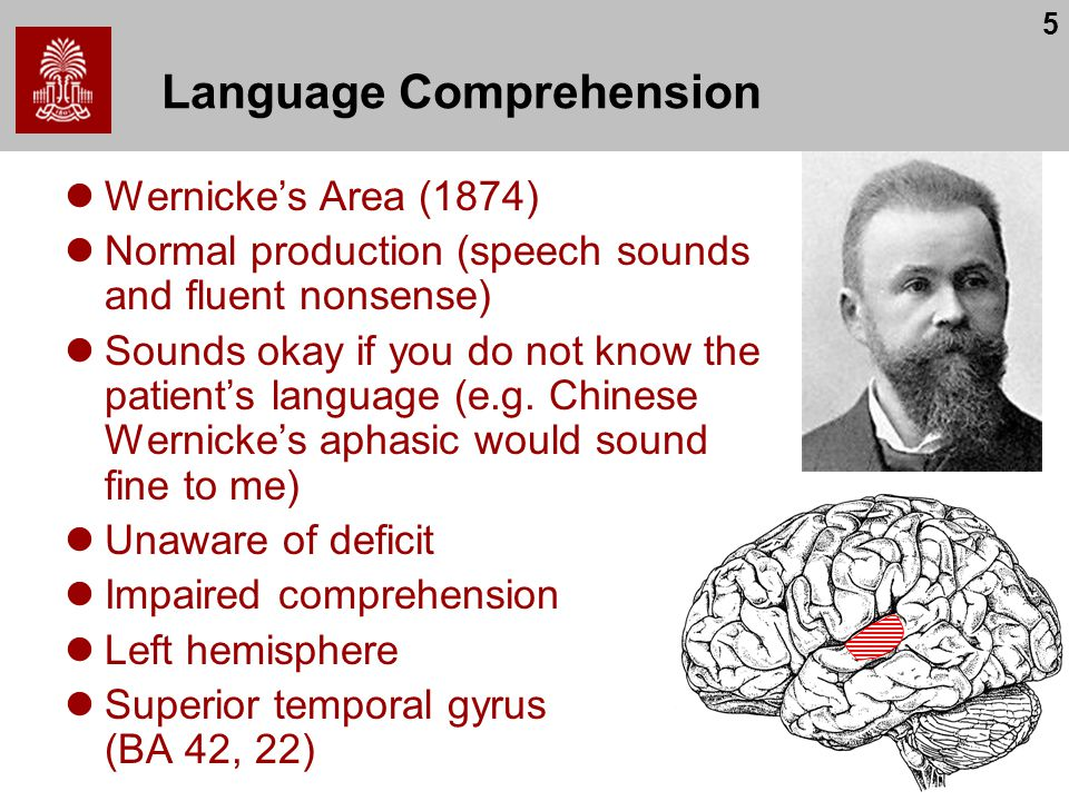 5 Language Comprehension Wernicke's Area (1874) Normal production (speech sounds and fluent nonsense) Sounds okay if you do not know the patient's lan