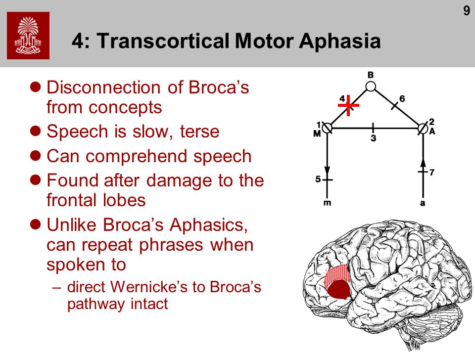 9 4: Transcortical Motor Aphasia Disconnection of Broca's from concepts Speech is slow, terse Can comprehend speech Found after damage to the frontal lobes Unlike Broca's Aphasics, can repeat phrases when spoken to –direct Wernicke's to Broca's pathway intact