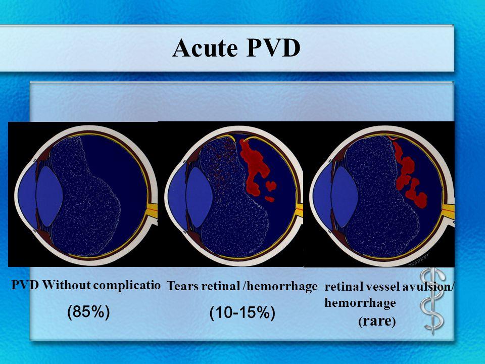 Acute PVD PVD Without complicatio (85%) Tears retinal /hemorrhage (10-15%) retinal vessel avulsion/ hemorrhage ( rare )