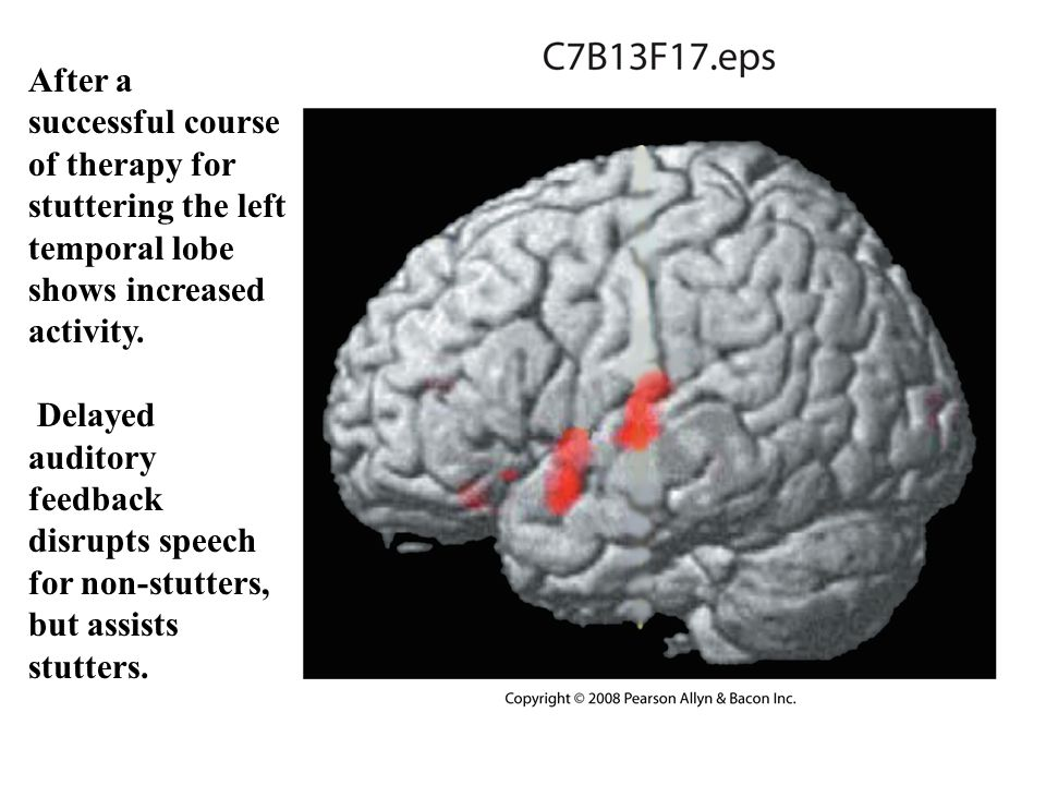 Copyright © 2008 Pearson Allyn & Bacon Inc.37 After a successful course of therapy for stuttering the left temporal lobe shows increased activity.