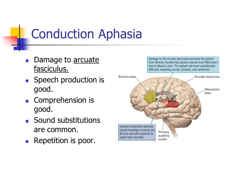 Conduction Aphasia Damage to arcuate fasciculus. Speech production is good.
