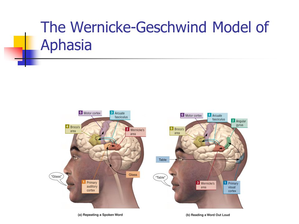 The Wernicke-Geschwind Model of Aphasia