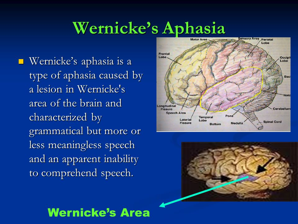 Wernicke's Aphasia Wernicke's aphasia is a type of aphasia caused by a lesion in Wernicke s area of the brain and characterized by grammatical but more or less meaningless speech and an apparent inability to comprehend speech.