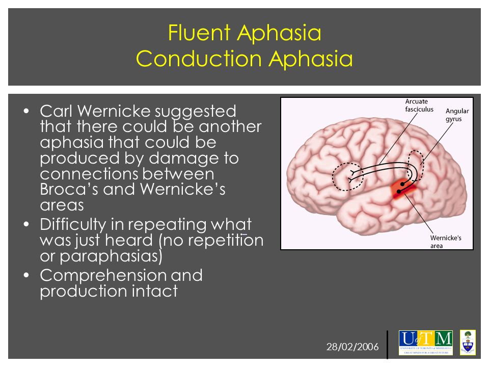 28/02/2006 Fluent Aphasia Conduction Aphasia Carl Wernicke suggested that there could be another aphasia that could be produced by damage to connectio
