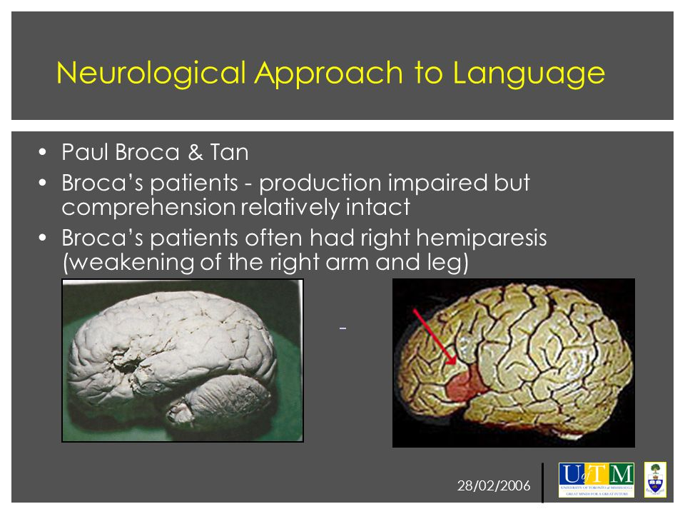 28/02/2006 Psychological Perspective Summary Location of Damage PhonemesSyntaxSemantics Anterior (e.g., Broca's aphasia) Difficulty in producing particular phonemes ImpairedUnimpaired (unless syntax important) Posterior (e.g., Wernicke's aphasia) Phoneme substitutionsRelatively Unimpaired Impaired Summary of neurological and psychological perspectives: 1.Anterior regions (i.e., the frontal lobe) are important for speech production and syntax 2.Posterior regions (i.e., temporal and parietal lobe) are important for comprehension and semantic processing