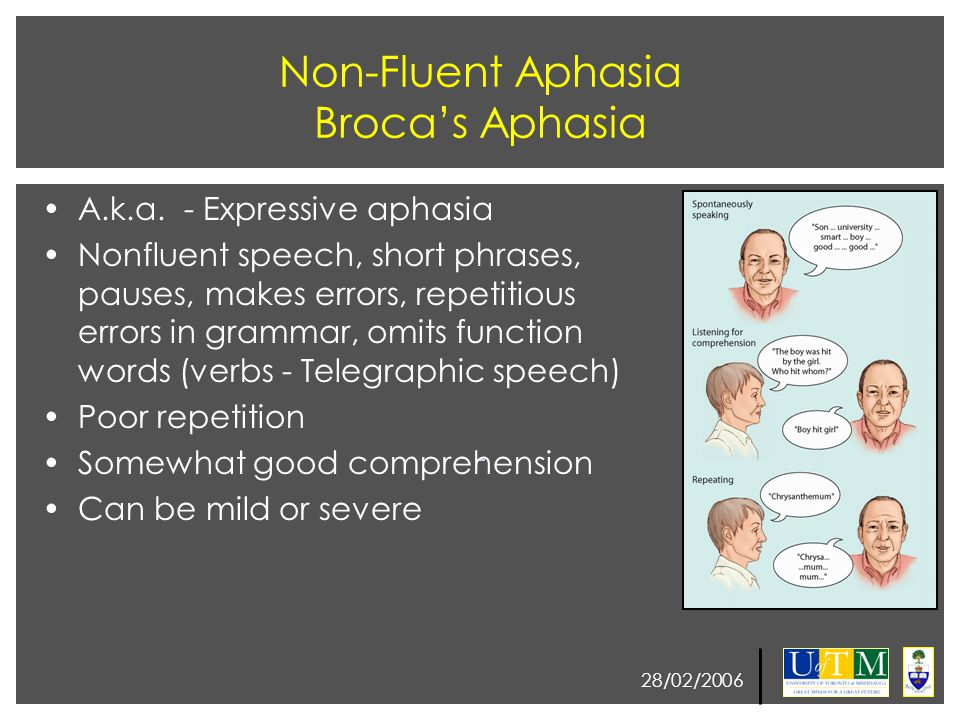 28/02/2006 Right Hemisphere Contribution to Language Since Broca, the left hemisphere's role in language has been central and right hemisphere has viewed as non- language hamisphere In split-brain patients language can emerge from the right hemisphere The right hemisphere can not produce speech, use phone-to-grapheme correspondence or understand syntax The right hemisphere can extract basic meaning
