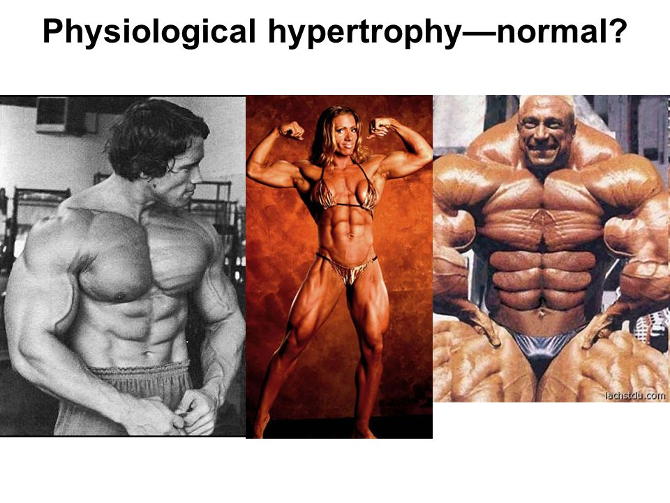 Physiological hypertrophy—normal