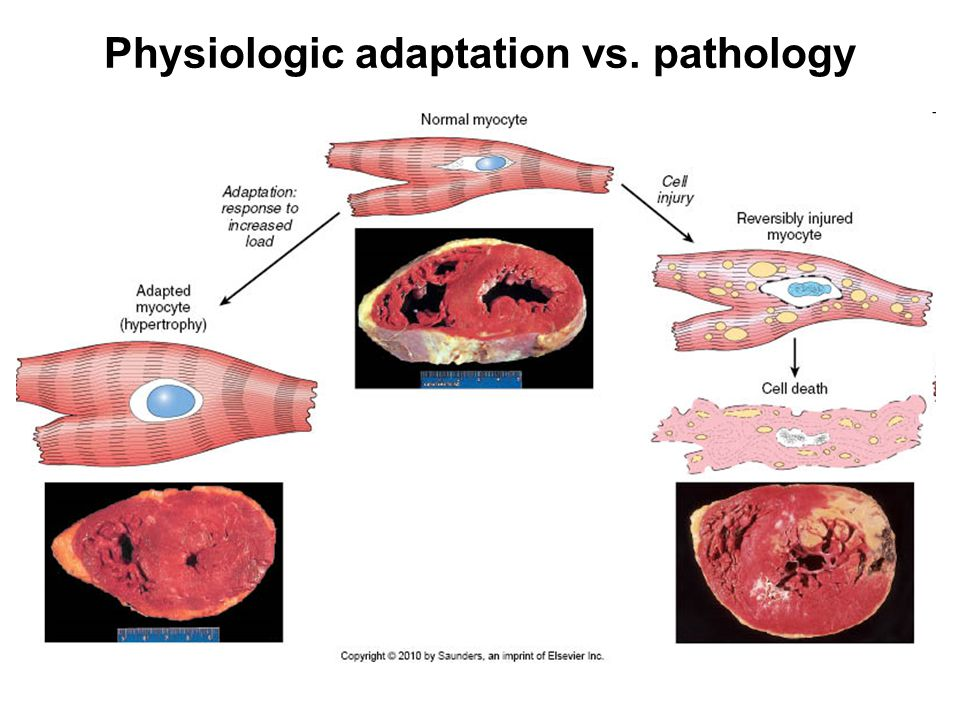 Physiologic adaptation vs. pathology