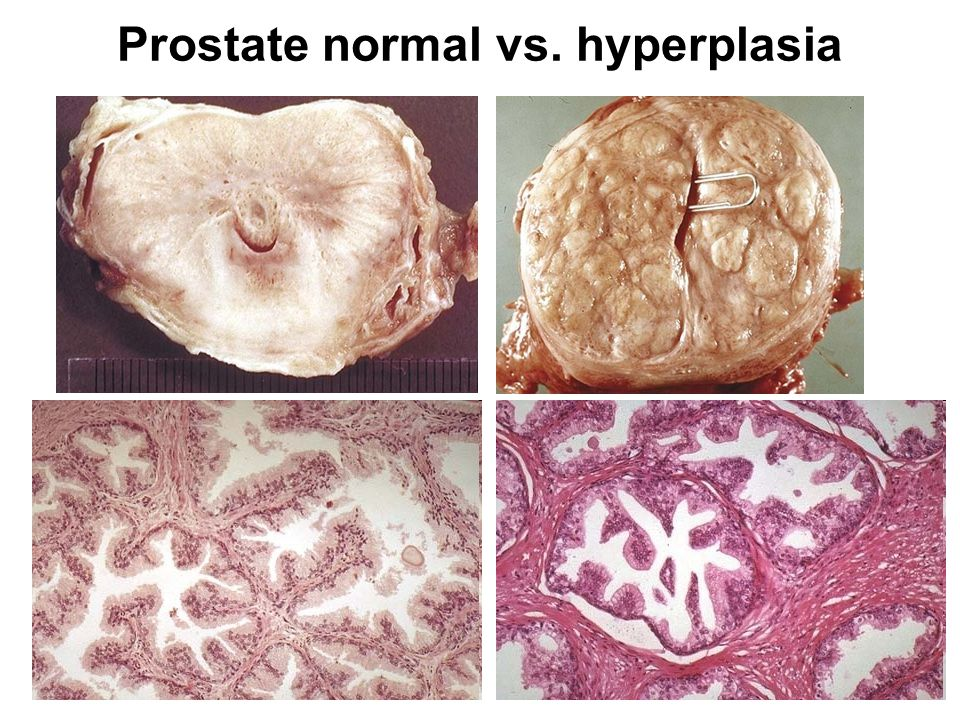 Prostate normal vs. hyperplasia