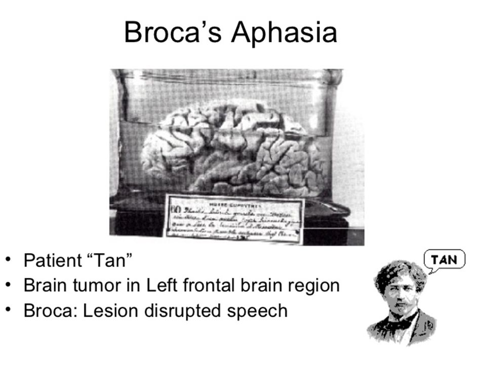 Boston Aphasia Classifications Broca's Aphasia - Speech is laborious and grammar can be incorrect.