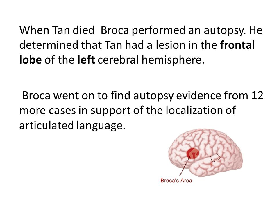Broca's (Expressive) aphasia Type of aphasia, which involves impairments in speech output.