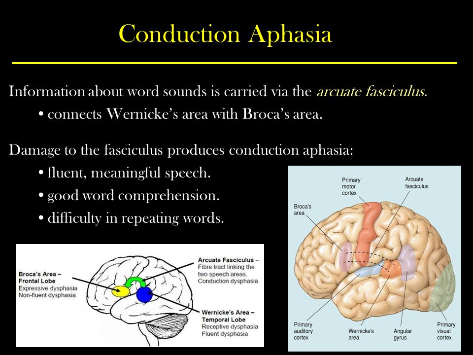 Conduction Aphasia Information about word sounds is carried via the arcuate fasciculus.
