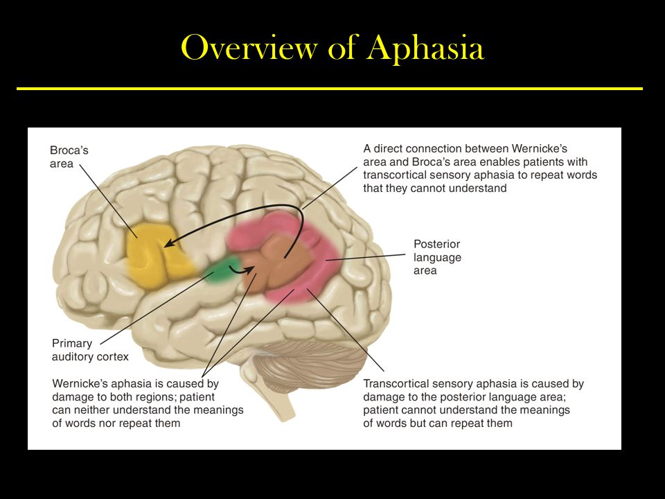 Overview of Aphasia