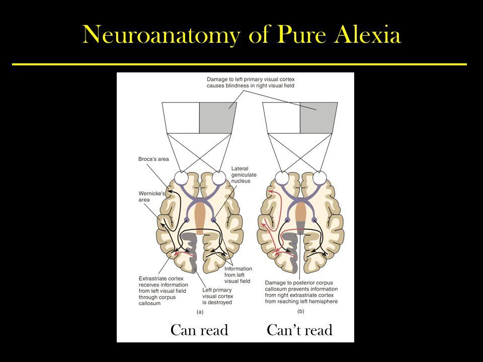 Neuroanatomy of Pure Alexia Can readCan't read