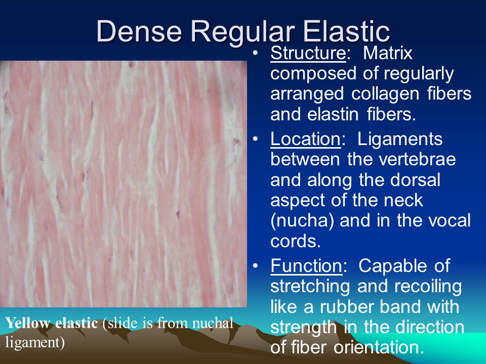 Dense Regular Elastic Yellow elastic (slide is from nuchal ligament) Structure: Matrix composed of regularly arranged collagen fibers and elastin fibers.