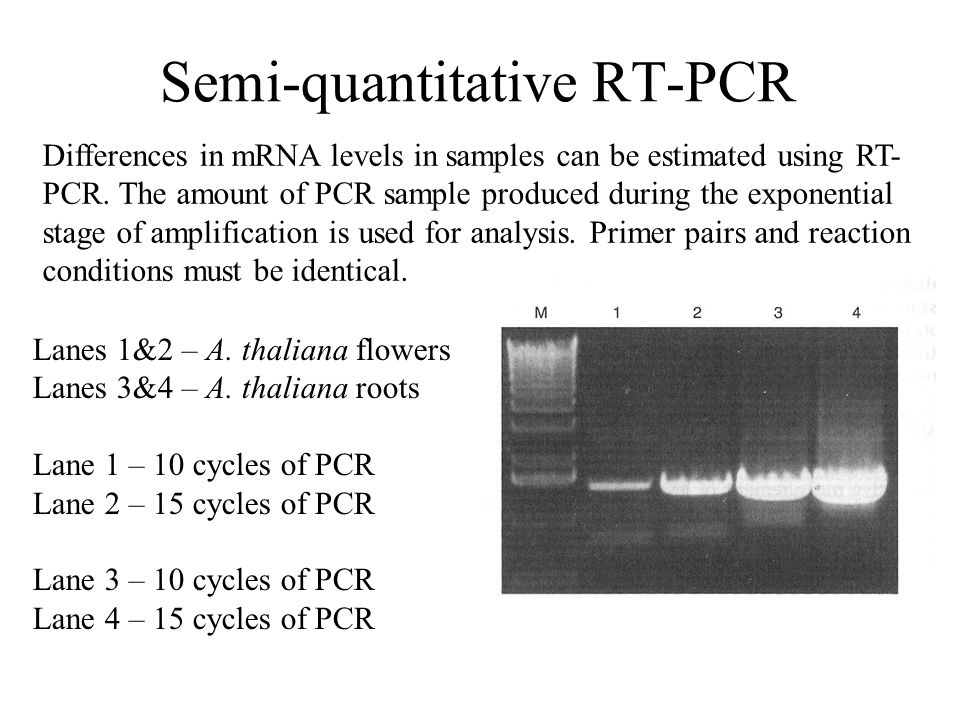 Semi-quantitative RT-PCR Differences in mRNA levels in samples can be estimated using RT- PCR.