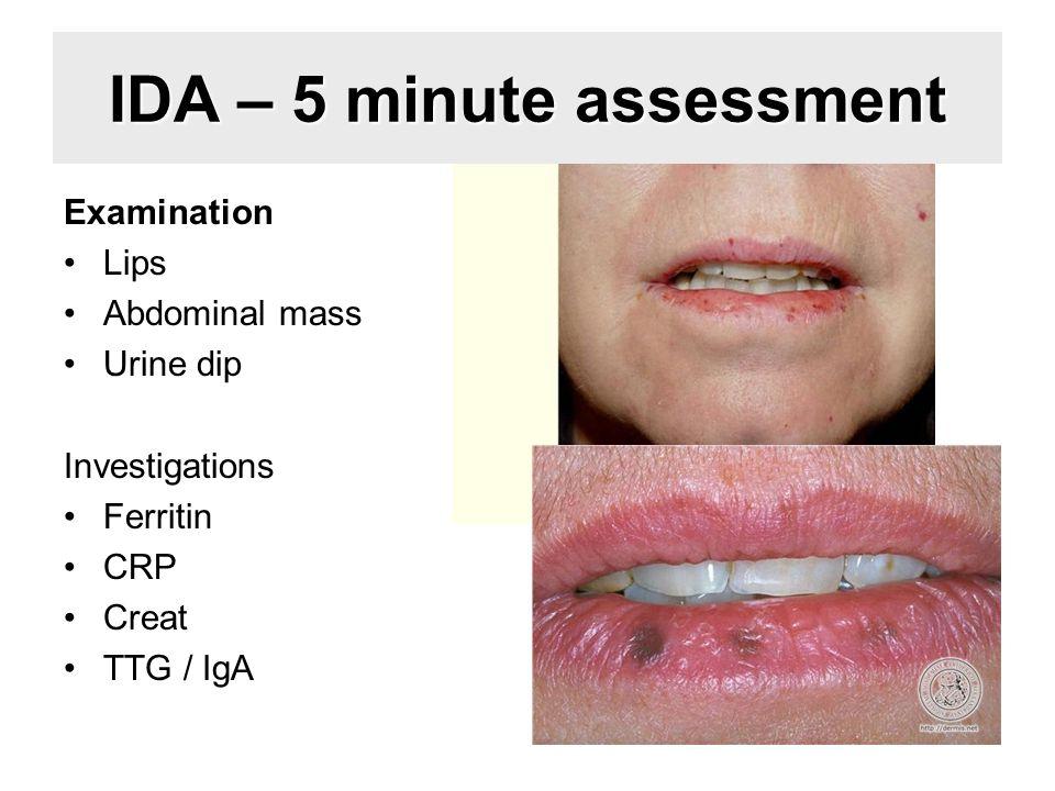 IDA – 5 minute assessment Examination Lips Abdominal mass Urine dip Investigations Ferritin CRP Creat TTG / IgA
