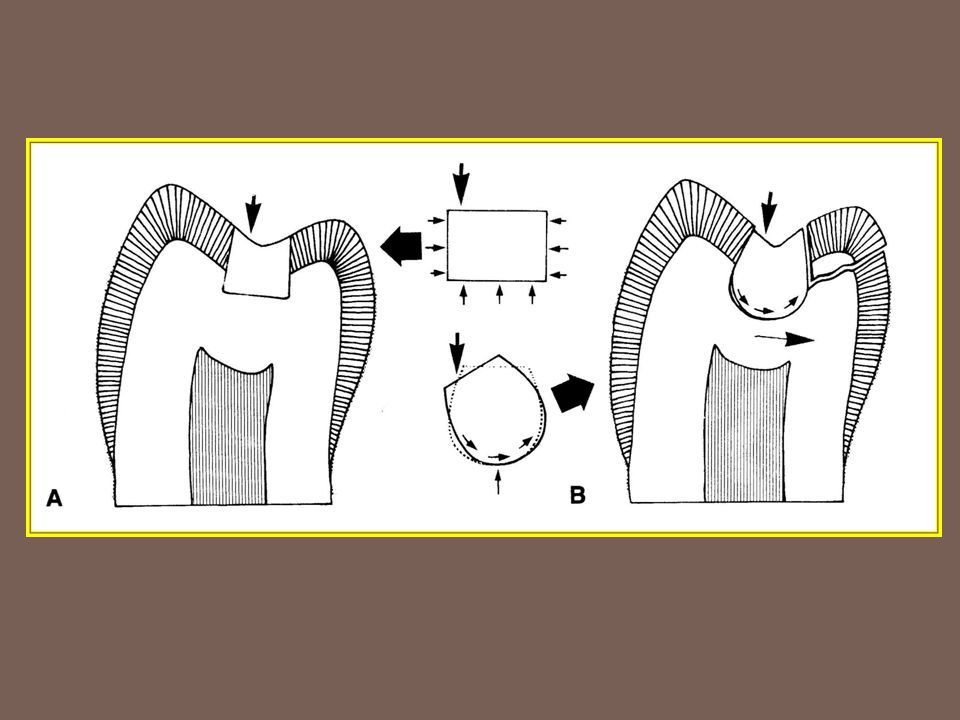 Initial cavity preparation stage Step 1 Outline form and initial depth Step 2 Primary resistance form Step 3 Primary retention form Step 4 Convenience form