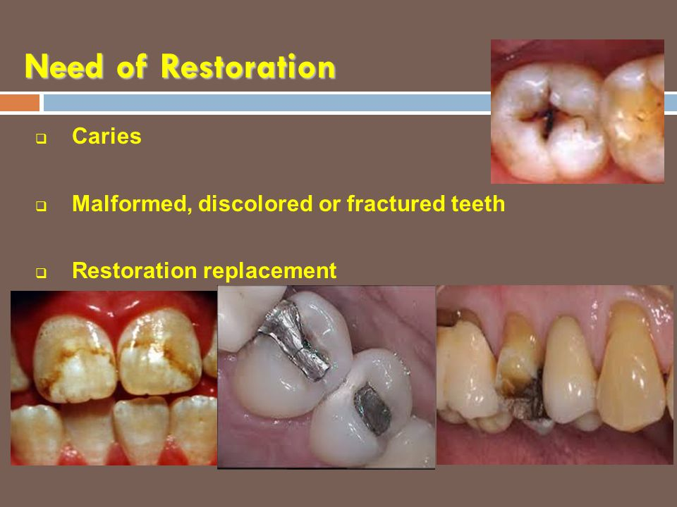 Need of Restoration  Caries  Malformed, discolored or fractured teeth  Restoration replacement