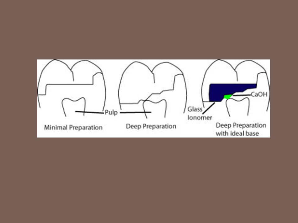 Final cavity preparation stage…..