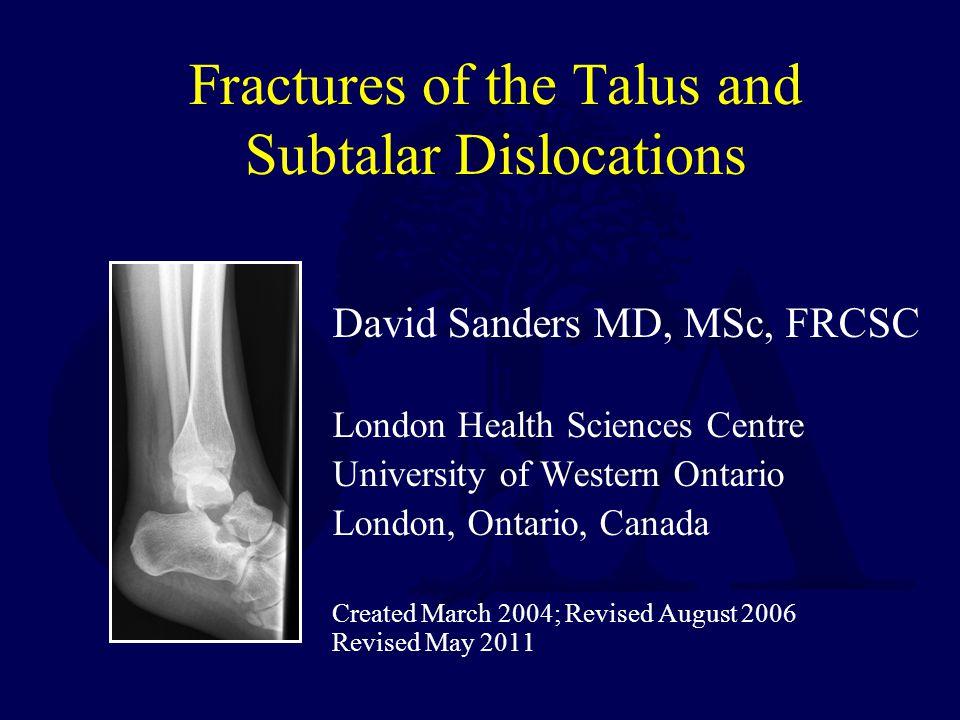 Case Example: Talar Head Fracture Talar head injury Subtle on plain x-ray