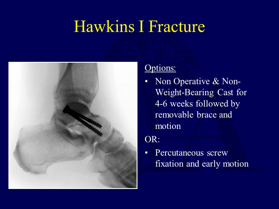 Hawkins I Fracture Options: Non Operative & Non- Weight-Bearing Cast for 4-6 weeks followed by removable brace and motion OR: Percutaneous screw fixat
