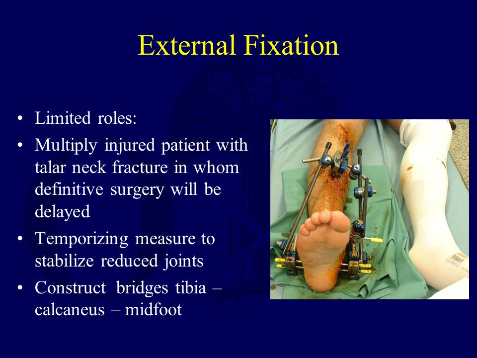 External Fixation Limited roles: Multiply injured patient with talar neck fracture in whom definitive surgery will be delayed Temporizing measure to s