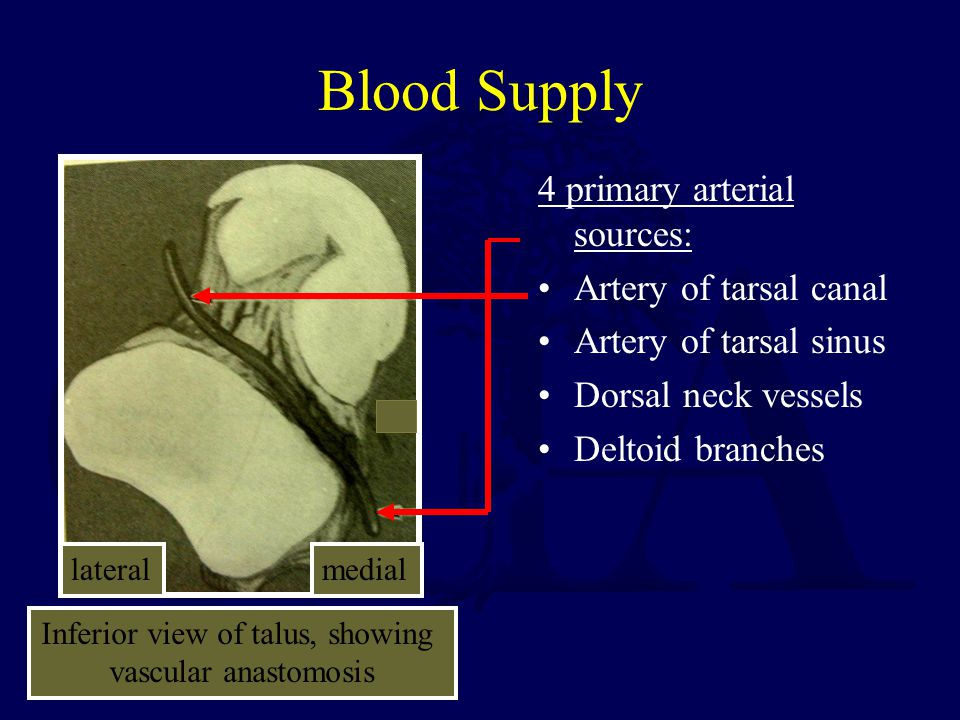 Vascularity Artery of tarsal canal supplies majority of talar body Side ViewTop View Deltoid Branches Posterior tubercle vessels Artery of Tarsal Sinus Artery of Tarsal Canal Superior Neck Vessels Artery of Tarsal Sinus Artery of Tarsal Canal Posterior tubercle vessels