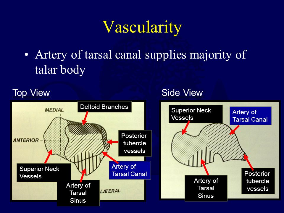 Vascularity Artery of tarsal canal supplies majority of talar body Side ViewTop View Deltoid Branches Posterior tubercle vessels Artery of Tarsal Sinu