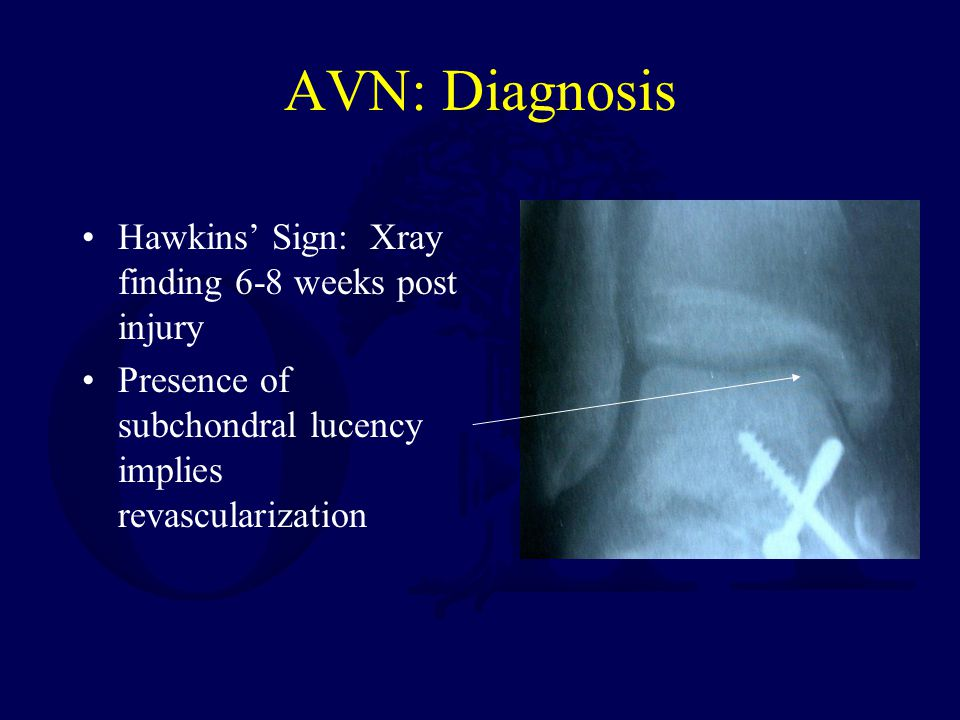 AVN: Diagnosis Hawkins' Sign: Xray finding 6-8 weeks post injury Presence of subchondral lucency implies revascularization
