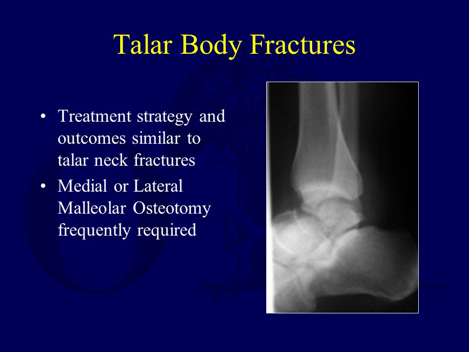 Talar Body Fractures Treatment strategy and outcomes similar to talar neck fractures Medial or Lateral Malleolar Osteotomy frequently required