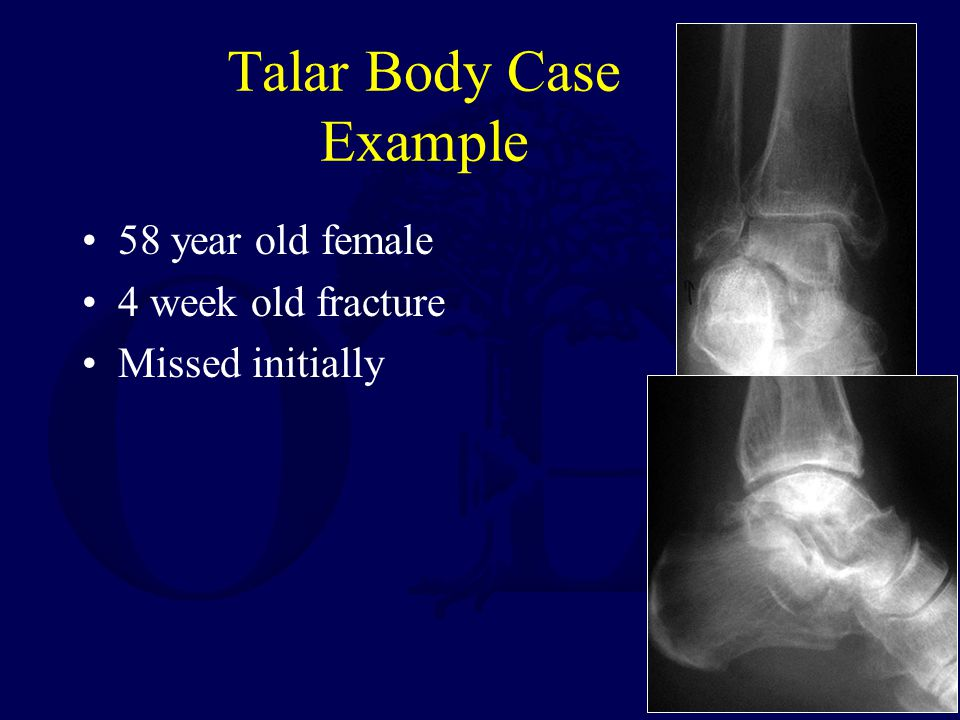 Talar Body Case Example 58 year old female 4 week old fracture Missed initially
