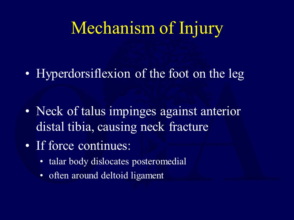 Mechanism of Injury Hyperdorsiflexion of the foot on the leg Neck of talus impinges against anterior distal tibia, causing neck fracture If force cont