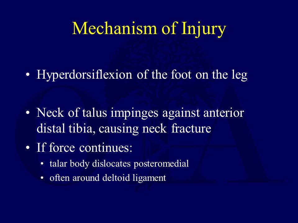 Post Traumatic Arthritis Incidence of post- traumatic arthritis 30-90 %