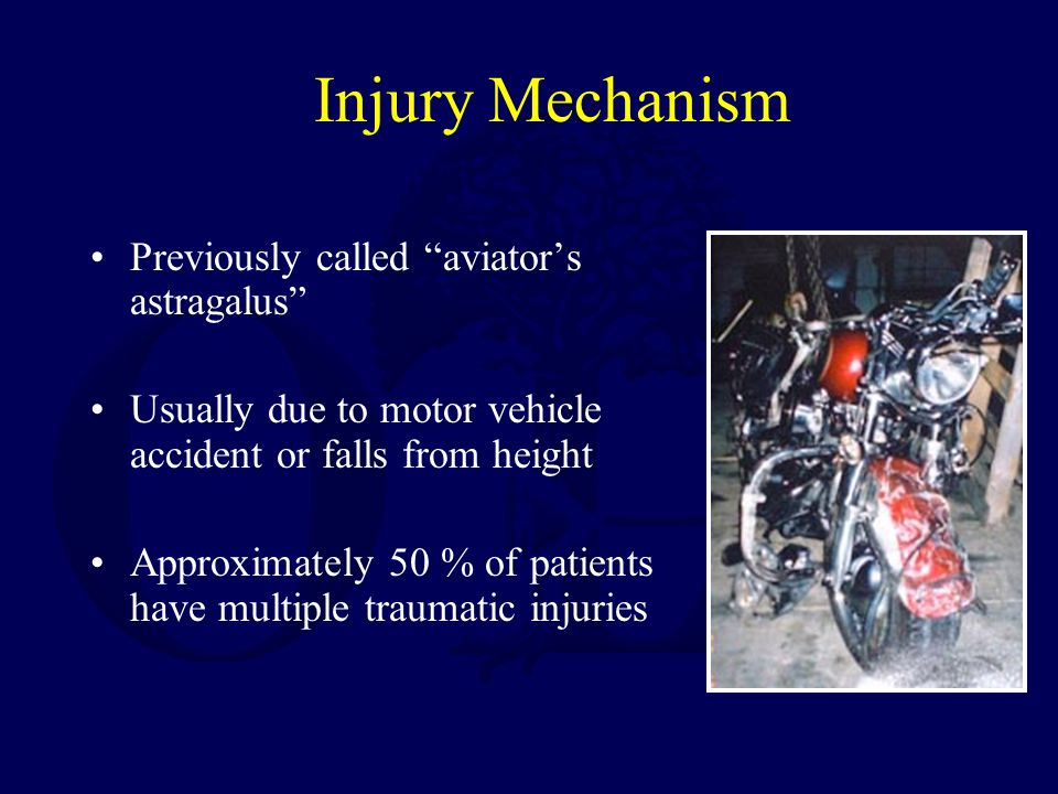 "Injury Mechanism Previously called ""aviator's astragalus"" Usually due to motor vehicle accident or falls from height Approximately 50 % of patients ha"