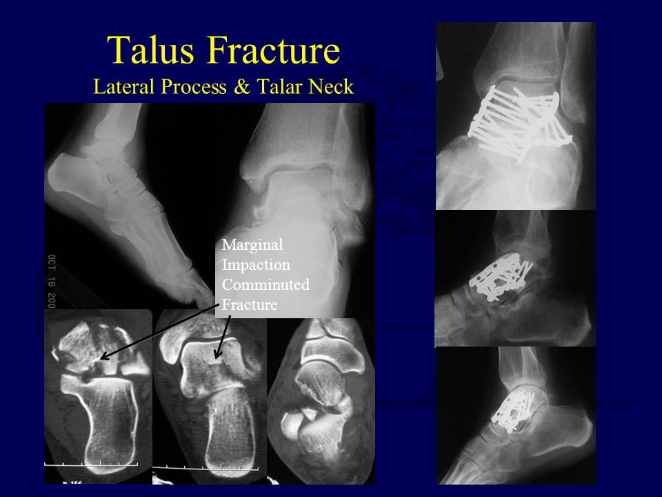 Talus Fracture Lateral Process & Talar Neck Marginal Impaction Comminuted Fracture