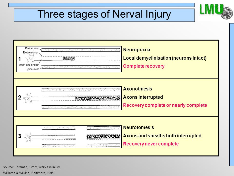 Three stages of Nerval Injury source: Foreman, Croft, Whiplash Injury Williams & Wilkins, Baltimore, 1995 1 Neuropraxia Local demyelinisation (neurons intact) Complete recovery 2 Axonotmesis Axons interrupted Recovery complete or nearly complete 3 Neurotomesis Axons and sheaths both interrupted Recovery never complete
