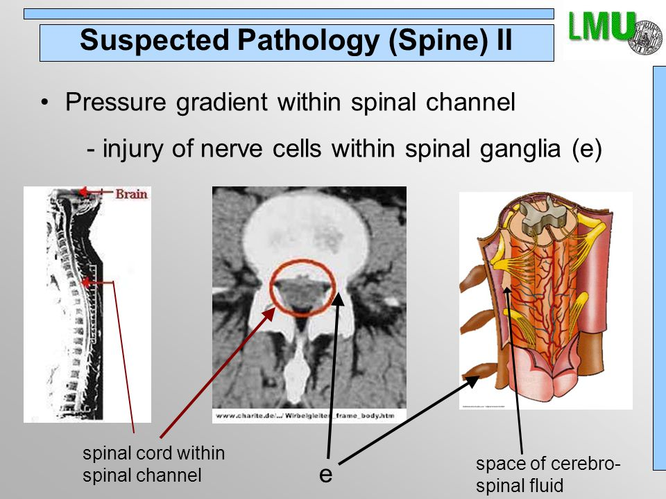 Suspected Pathology (Spine) II Pressure gradient within spinal channel - injury of nerve cells within spinal ganglia (e) e space of cerebro- spinal fluid spinal cord within spinal channel
