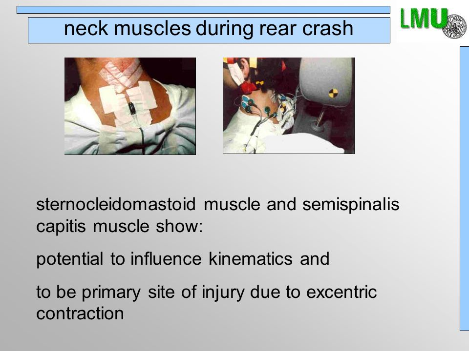 neck muscles during rear crash sternocleidomastoid muscle and semispinalis capitis muscle show: potential to influence kinematics and to be primary site of injury due to excentric contraction