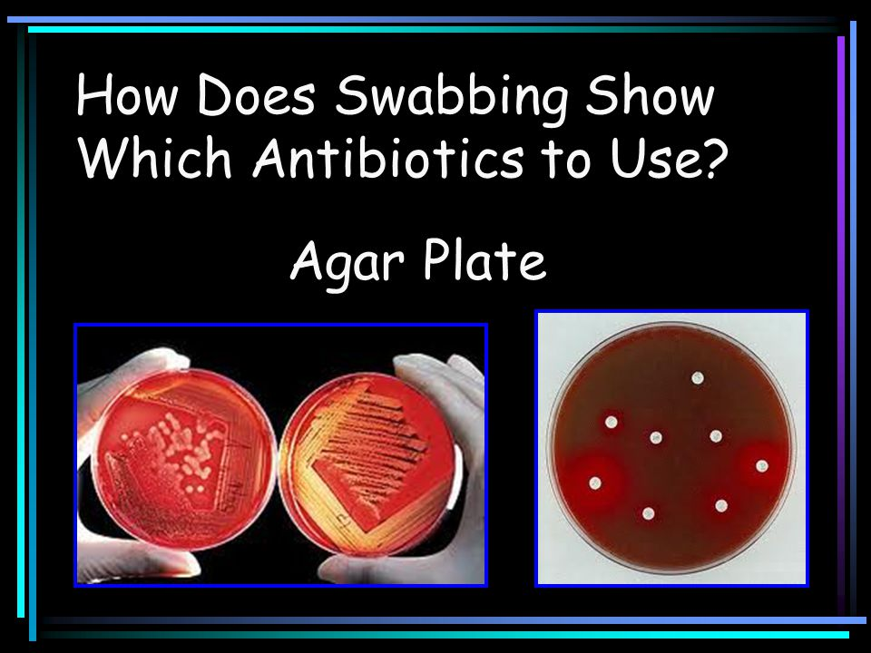 Agar Plate How Does Swabbing Show Which Antibiotics to Use