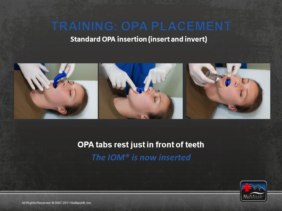 Standard OPA insertion (insert and invert) OPA tabs rest just in front of teeth All Rights Reserved.
