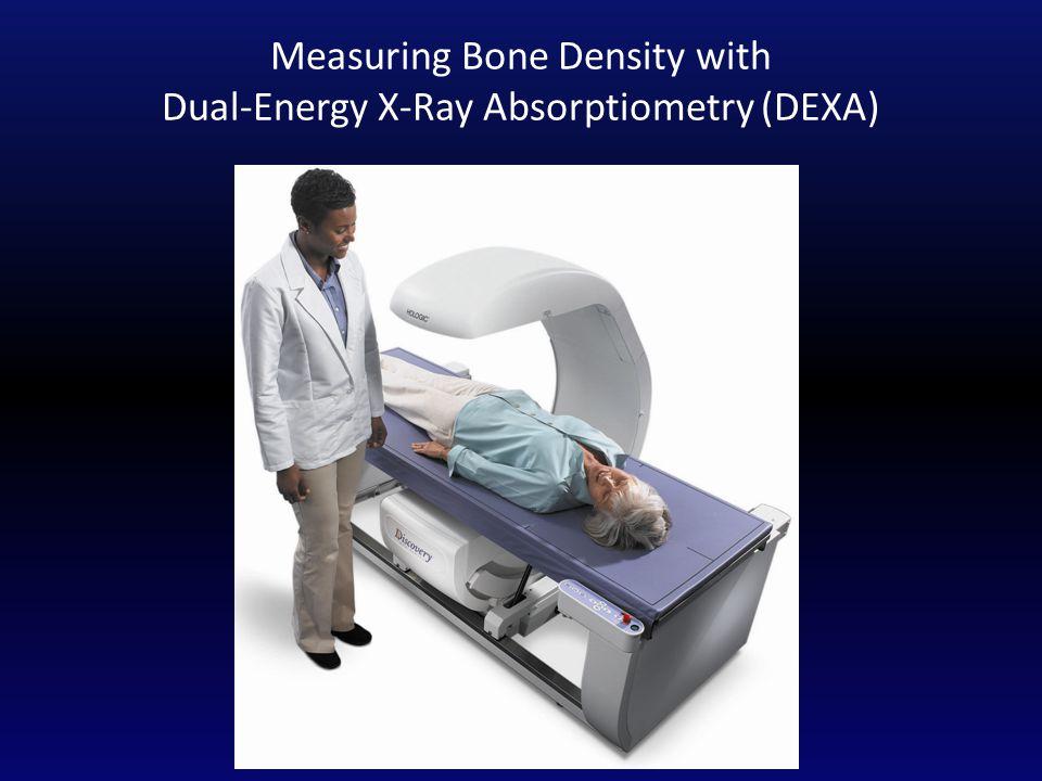 Measuring Bone Density with Dual-Energy X-Ray Absorptiometry (DEXA)