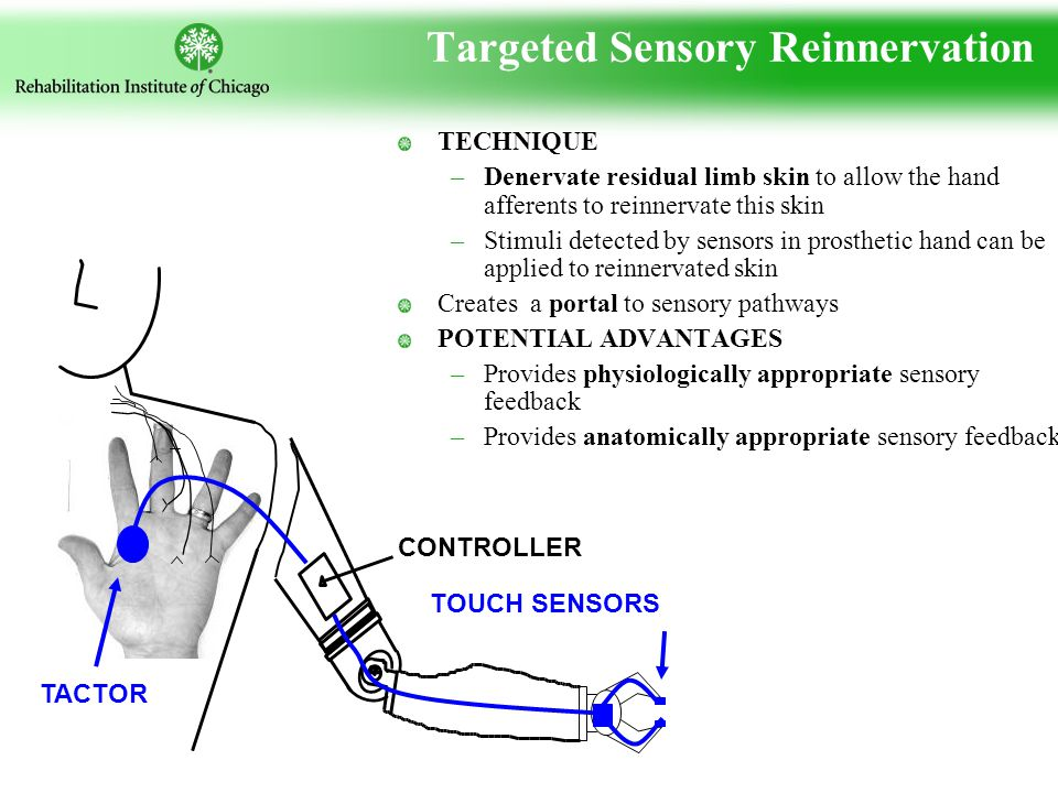 Targeted Sensory Reinnervation TECHNIQUE –Denervate residual limb skin to allow the hand afferents to reinnervate this skin –Stimuli detected by sensors in prosthetic hand can be applied to reinnervated skin Creates a portal to sensory pathways POTENTIAL ADVANTAGES –Provides physiologically appropriate sensory feedback –Provides anatomically appropriate sensory feedback