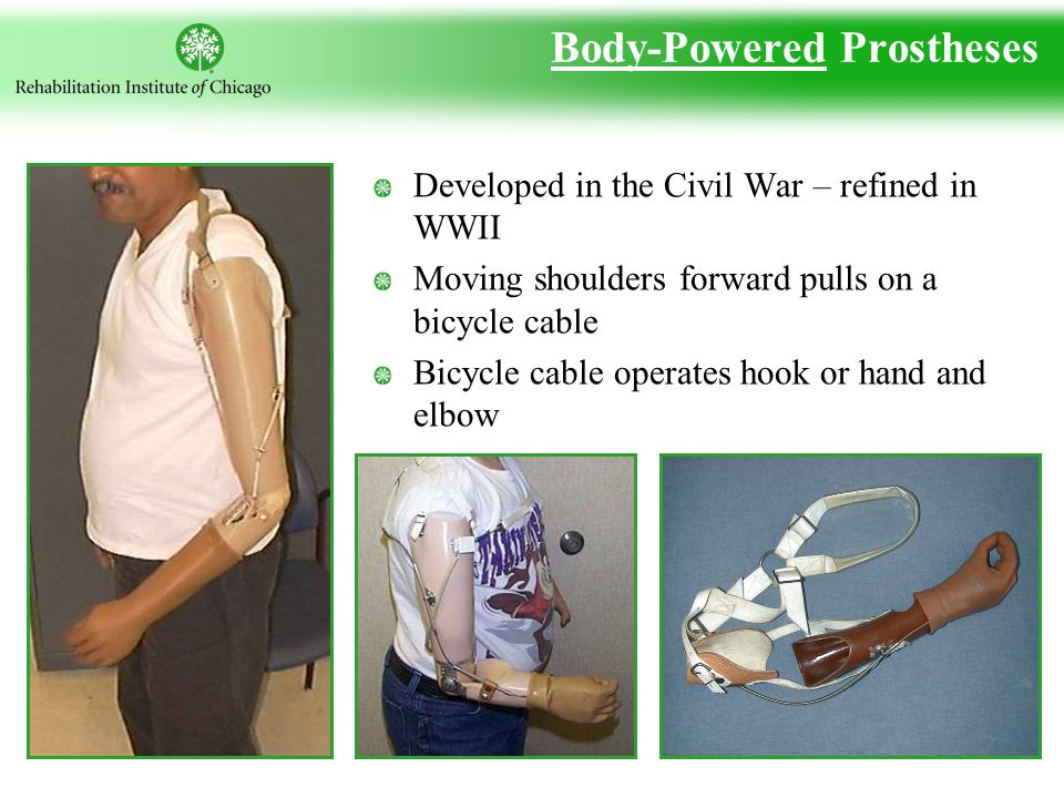 Body-Powered Prostheses Developed in the Civil War – refined in WWII Moving shoulders forward pulls on a bicycle cable Bicycle cable operates hook or hand and elbow