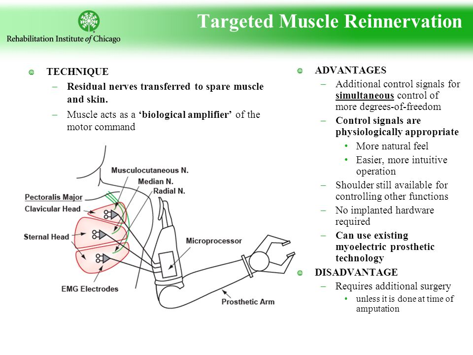 Targeted Muscle Reinnervation TECHNIQUE –Residual nerves transferred to spare muscle and skin.