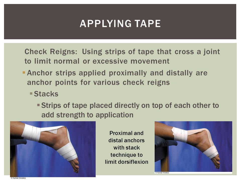 Check Reigns: Using strips of tape that cross a joint to limit normal or excessive movement  Anchor strips applied proximally and distally are anchor