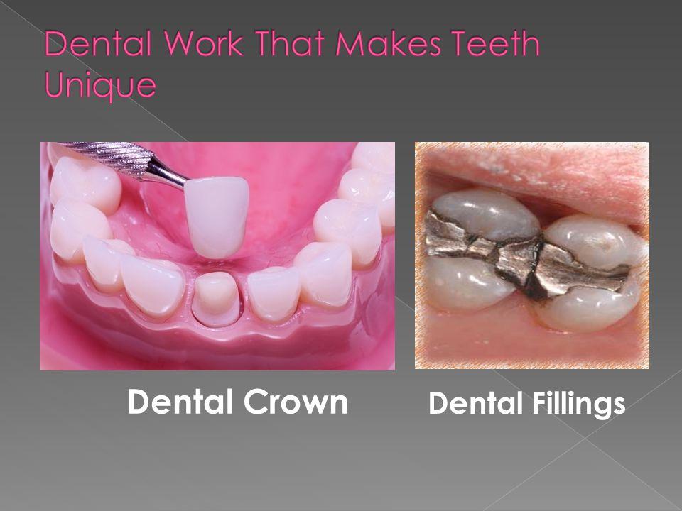 Dental Crown Dental Fillings