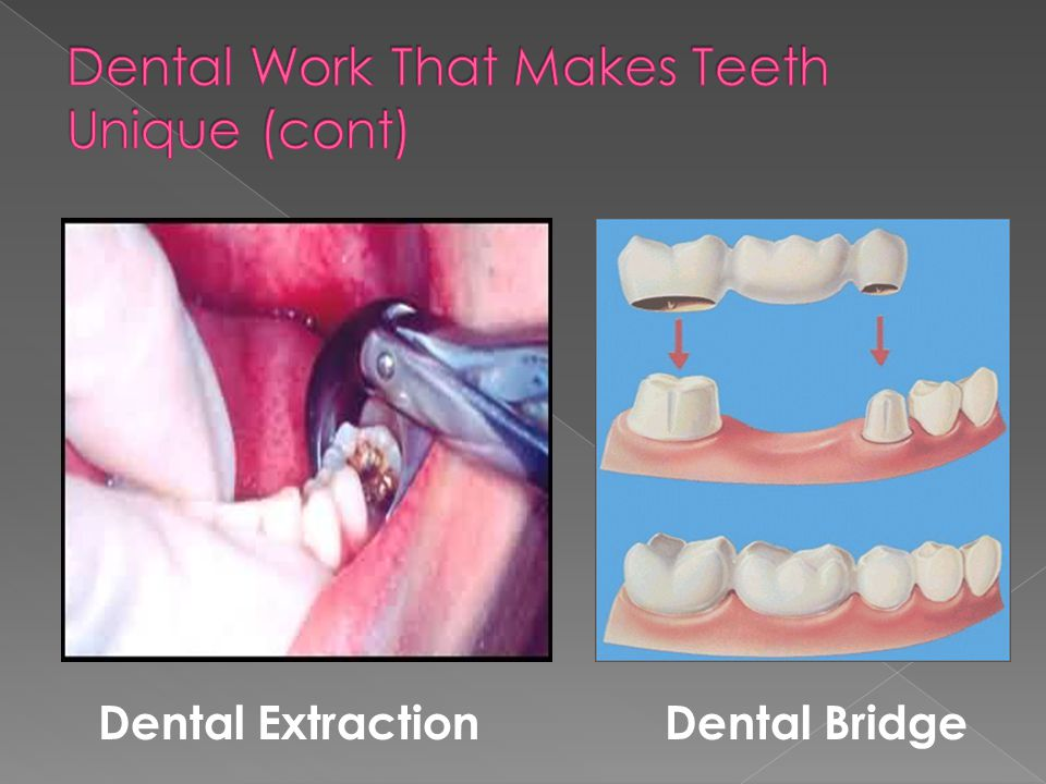 Dental ExtractionDental Bridge