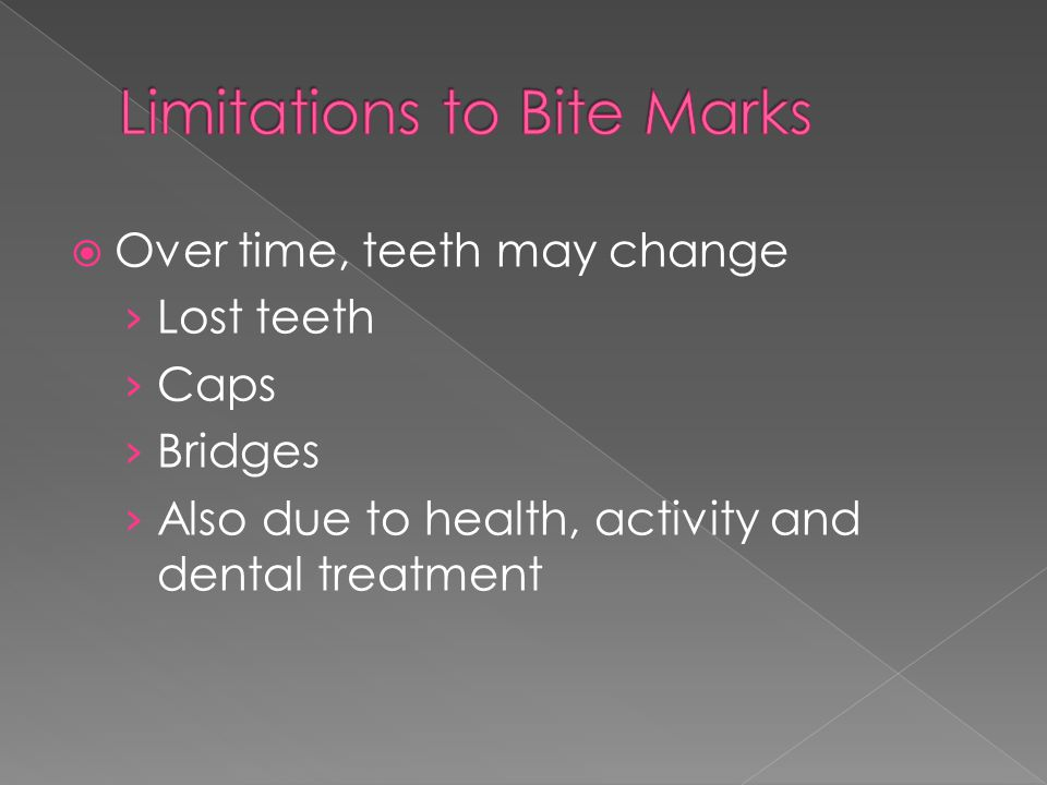  Over time, teeth may change › Lost teeth › Caps › Bridges › Also due to health, activity and dental treatment