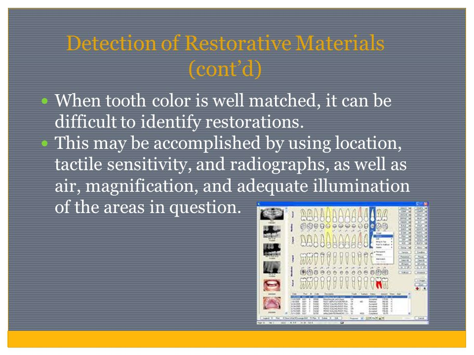Detection of Restorative Materials (cont'd) When tooth color is well matched, it can be difficult to identify restorations. This may be accomplished b